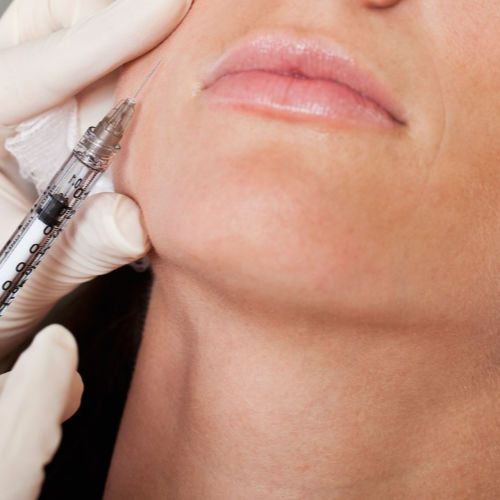 Lower face anti-wrinkle treatments in Brighton & Seaford