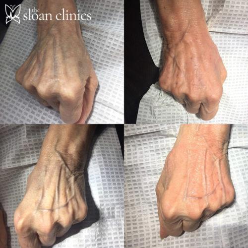 Dr Emma Sloan injecting hand filler