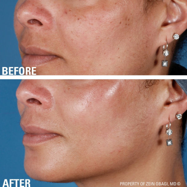 before and after of a womans face after using ZO anti ageing treatment