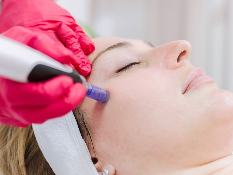 Dermapen treatment in Brighton