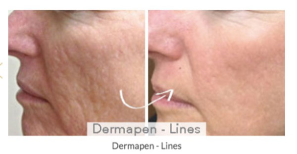 Dermapen before and after treatment for fine lines
