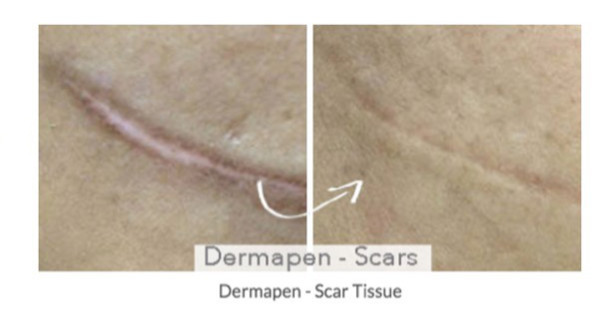 Dermapen before and after treatment for scars