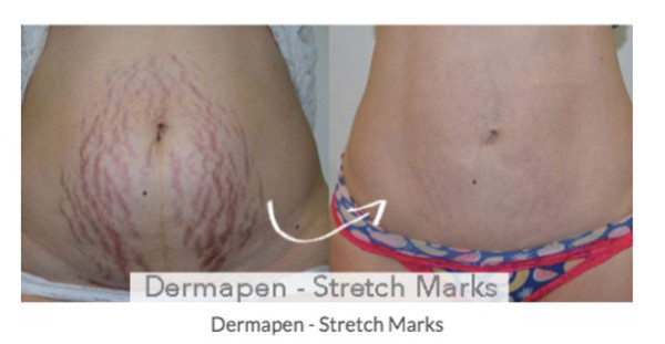 Dermapen before and after treatment for stretch marks