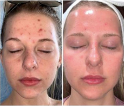 Before and after photo of patient using ZO Complexion Clearing Program